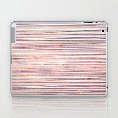 U N I versal Love Strings Laptop & iPad Skin