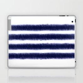 Indigo Stripes Laptop & iPad Skin
