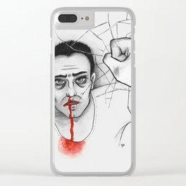 Bernat Clear iPhone Case