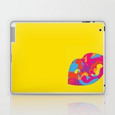 Besos Laptop & iPad Skin