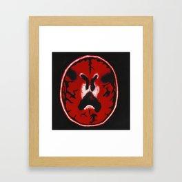 Red Brain Scan Framed Art Print
