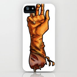 The Severed Hand iPhone Case