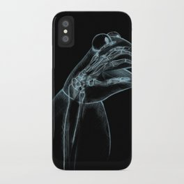 Puppet Check Up iPhone Case