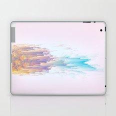 Pink Pineapple Power! Laptop & iPad Skin