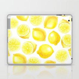 Watercolor lemons design Laptop & iPad Skin