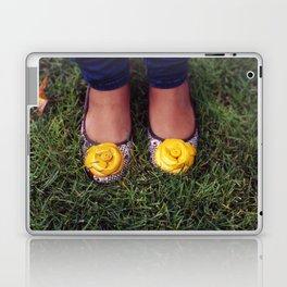 Yellow Flower Shoe! Laptop & iPad Skin