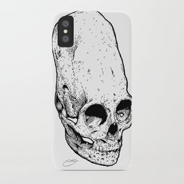 The Giant's Skull iPhone Case
