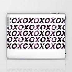Cosmic XO Print Laptop & iPad Skin