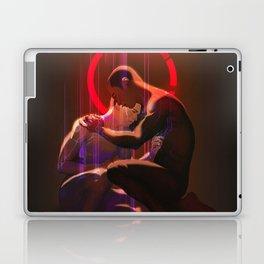 Tether Laptop & iPad Skin