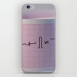 Approach and defocus an electrocardiogram strip. Record of the electrical activity of the heart. iPhone Skin