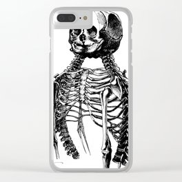 The Creepy Twins Clear iPhone Case