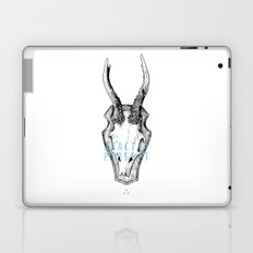 Exactly Perfect  Laptop & iPad Skin