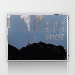 The Big Smoke - Dublin Laptop & iPad Skin