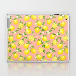You're the Zest - Lemons on Pink Laptop & iPad Skin