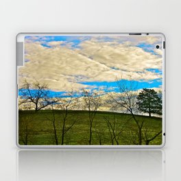 Morning at the Top of the Hill Laptop & iPad Skin