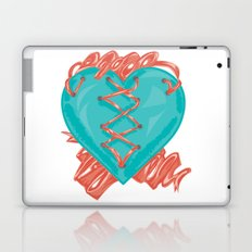 Ribbon Heart Laptop & iPad Skin