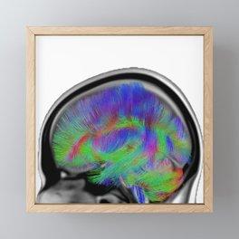 Sagittal Clear Framed Mini Art Print