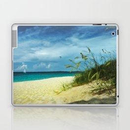 Tropical Idyll Laptop & iPad Skin