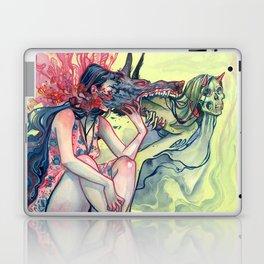 Evervated Laptop & iPad Skin