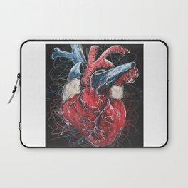 Scribpulse Laptop Sleeve