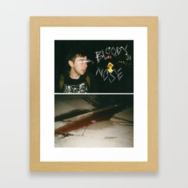 Bloody Nose Framed Art Print