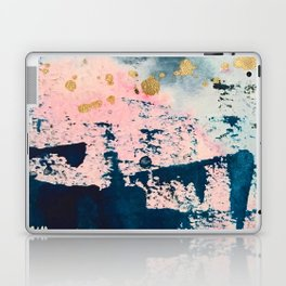 Candyland: a vibrant, colorful abstract piece in blue teal pink and gold by Alyssa Hamilton Art Laptop & iPad Skin