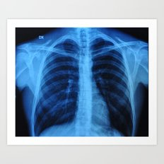 x ray medical radiography Art Print