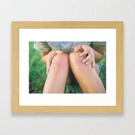 Skinned Framed Art Print