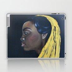 Černoška Laptop & iPad Skin