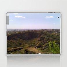 This is Los Angeles Laptop & iPad Skin