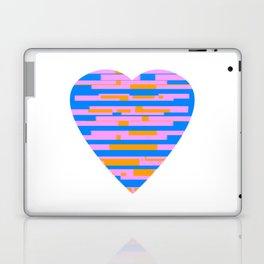 Glitching Hearts — Pink, Blue, and Orange Laptop & iPad Skin