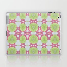 14. Laptop & iPad Skin