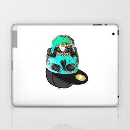 I need money Laptop & iPad Skin