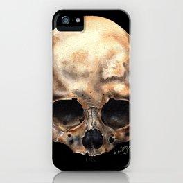 Alas, Poor Yorick! iPhone Case
