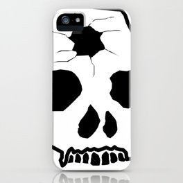 Zombie Skull iPhone Case