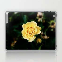 Bright Love Laptop & iPad Skin