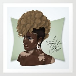 Vitiligo Beauty Art Print