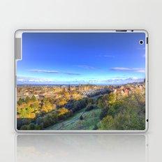 Edinburgh City View Laptop & iPad Skin