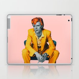 pinky bowie 2 Laptop & iPad Skin