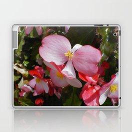 Begonia in the Rose Garden Laptop & iPad Skin