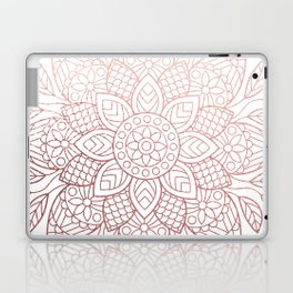 Rose Gold Dream Laptop & iPad Skin