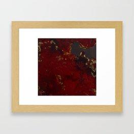 Pancytopenia Framed Art Print
