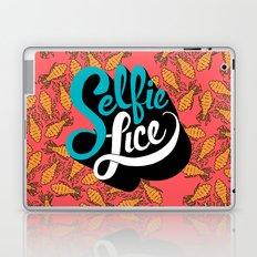 Selfie Lice Laptop & iPad Skin