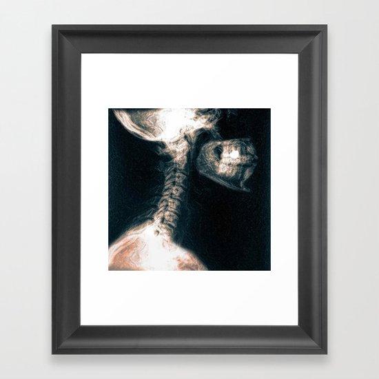 Pain in the Neck Framed Art Print