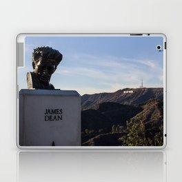 So Hollywood Laptop & iPad Skin