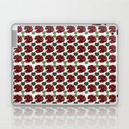 Garnets and fractal hearts Laptop & iPad Skin