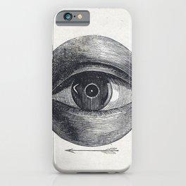 Menselijk oog met een afwijking (1836-1912) print in high resolution by Isaac Weissenbruch iPhone Case