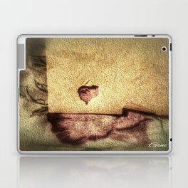 """""""Torn"""" Laptop & iPad Skin"""