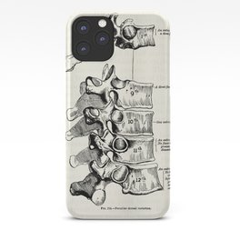 Vintage Anatomy Illustration of the Thoracic vertebrae iPhone Case