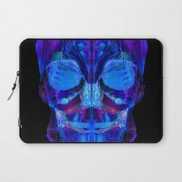 Neon Skull Laptop Sleeve